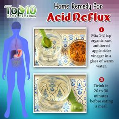 Home Remedies for Acid Reflux & GERD | Top 10 Home Remedies