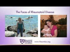 The Rheumatoid Patient Foundation (RPF) presents: The Faces of Rheumatoid Disease, a video testimonial from people living with #Rheumatoid #Autoimmune #Disease (RAD), also known as Rheumatoid Arthritis or #RA. Patients explain in their own words:  1. How living with RAD has affected their lives.  2. What they most want others to know about RAD.  3. What they need from their rheumatology care.  4. The most frustrating things about living with RAD.