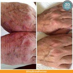 No es #magia. Es el resultado de años de investigación científica. Descubre lo que #Nerium puede hacer por tu #piel
