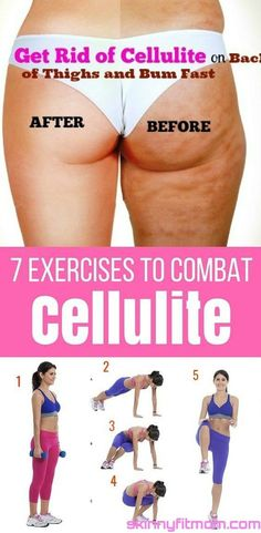 9 Best Exercises To Get Rid Of Cellulite On Buttocks And Thighs. Pinned over 1k times