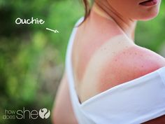 Soooo Many Awesome Sunburn Remedies! How did I not know about these? {Thanks for all your suggestions!}