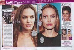Here are my thoughts about the beautiful Angelina Jolie in the Sept. 2 issue of Life & Style Magazine. What do you think about the change in her looks? Visit http://www.perlmanmd.com/ for info about #plasticsurgery or http://perlmanmd.com/Juvederm-injection-wrinkles.htm for #botox #fillerinjections