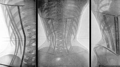 c. 1900 xray of the rib cage damage due to wearing corsets... amazing! #history #women