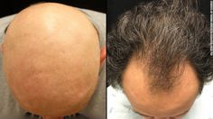 """""""It's incredible,"""" Mike Thomas said of his restored hair. """"I'm so happy to have it back."""""""