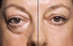 Comment faire un masque rapide et efficace pour éliminer les poches gonflés sous les yeux. Une recette à base de blanc d'oeuf et du café -2 ingrédients rois contre les poches