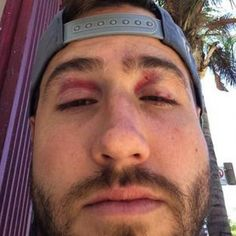 JJ Lane Attacked and Beaten After Filming The Bachelorette 2015 'Men Tell All' - Kaitlyn Bristowe's Ex Saved by Ben Zorn!