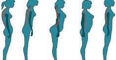 Υγεία - Έχετε ίσια την πλάτη σαν μπαλαρίνα, ή κάνετε καμπούρα σαν τον Κουασιμόδο; Η στάσn του σώματος μπορεί να προσδιορίσει αν θα υποφέρετε από πόνους στη μετέπει