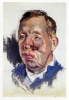 Henry Tonks - Tonks drew these beautiful and terrifying pictures of wounded soldiers in the Cambridge Hospital in Aldershot in 1916.