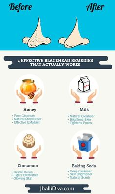 Infographic How to get rid of blackhead