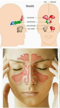 Sinusitis Ubicación Movies, Movie Posters, Paranasal Sinuses, Faces, Health, Films, Film Poster, Cinema, Movie