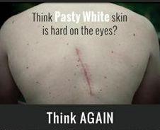 Pasty white or SKIN CANCER I choose Pasty White