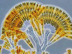 Nikon Small World 3rd Place, 2002  Wim van Egmund: Licmophora flabellata (marine diatom) (160x)