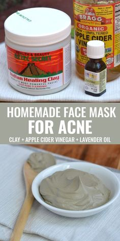 Simple homemade face mask for acne! Mix 1 tbsp bentonite clay + 1 tbsp apple cider vinegar + 1 drop lavender oil and apply to face for 30 minutes. Great for face mask, or spot treatment! via @CoconutsKettles