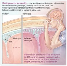 This JAMA Patient Page describes meningococcal meningitis, its causes, risk factors, and prevention measures. Nursing School Notes, Medical School, Medical Facts, Medical Blogs, Fundamentals Of Nursing, Medical Anatomy, Pediatric Nursing, Emergency Medicine, Dental
