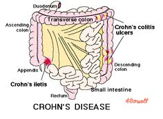 Is Crohn's disease a good topic?