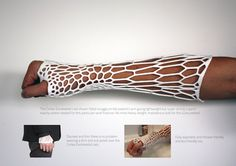 3D-Printed Cast Supports Fractures In A Ventilated, Recyclable Form http://www.ubergizmo.com/2013/07/3d-printed-cast-supports-fractures-in-a-ventilated-recyclable-form/