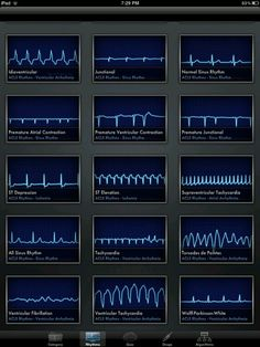 ACLS Rhythms Cheat Sheet Welcome, Guest Login Register Forgot Password : Ecg, Nursing School Notes, Nursing Schools, Lpn Schools, Nursing Information, Critical Care Nursing, Cardiac Nursing, Respiratory Therapy, Nclex