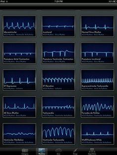 EKG dysrhythmias