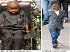 Boko Haram Kid Victim Walks After Dubai Surgery: ''I Want To Be A Policeman''