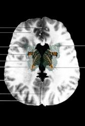 MRI Butterfly (2) - Suzanne Anker