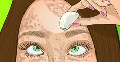 Как отбелить кожу в домашних условиях. Простые продукты, которые помогут избавиться от пигментных пятен.