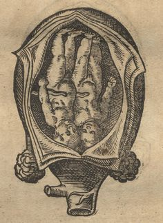 Old medical illustration, twins in utero