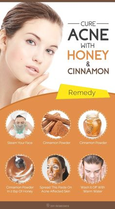 honey and cinnamon face mask side results Scar Remedies, Home Remedies For Pimples, Natural Acne Remedies, Homeopathic Remedies, Best Acne Remedies, Natural Cures, Back Acne Treatment, Natural Acne Treatment, Natural Skin Care