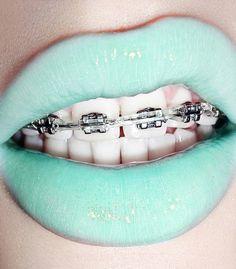 Bright lipstick & grills...is it weird that i miss my braces...i felt so gangsta!
