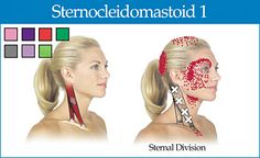 sternal division of the sternocleidomastoid - Copyright – Stock Photo / Register Mark