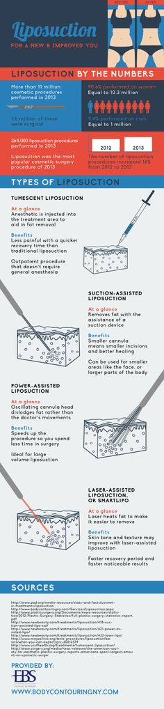 Tumescent liposuction is less painful than traditional liposuction. This option also has a quicker recovery time than its traditional counterpart. Take a look at this NYC liposuction infographic to learn about other types of liposuction procedures. Liposuction Procedure, Nyc, What Is Cellulite, Plastic Surgery Procedures, Coconut Oil Uses, Body Contouring, New York City, Beauty Tutorials, Infographic