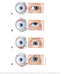 Cranial Nerve 3, Nerve Palsy, Hearing Impairment, Eye Anatomy, Emergency Medicine, All About Eyes, Health, Nursing, Study