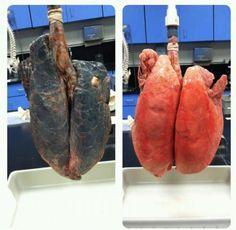 Lungs burned of an active smoker***Pulmones quemados de un fumador activo.