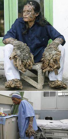 7 Bizarre Skin Conditions - Oddee.com (skin diseases pictures, skin conditions pictures)