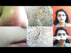 Remove Facial hair parmanently, How To Remove Facial Hair Naturally SkinCare Home Remedy - YouTube
