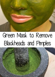 Everybody face at least one time per month with blackheads or pimples. Find out ., Beauty, Everybody face at least one time per month with blackheads or pimples. Find out a Green Mask to Remove Blackheads and Pimples Sour. Blackhead Remedies, Acne Remedies, Blackhead Remover, Natural Remedies, Health Remedies, Acne Skin, Acne Scars, Oily Skin, Sensitive Skin