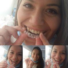 #happysmile #lathatatlanfogszabalyozo #Hanna #dentailor #zahnarztpraxiswien #zahnarztwien #radetzkyplatz #wien #unsichtbarezahnspange #unsichtbarekfo #kieferorthopädie Videos, Instagram, Earrings, Local Dentist Office, Ear Rings, Stud Earrings, Ear Piercings, Ear Jewelry, Beaded Earrings Native