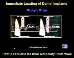 Videoconferencing: Immediate Loading of Dental Implants: How to Fabricate the Ideal Temporary Restoration | Odonto-TV