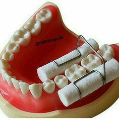 🔹Que FANTÁSTICO esse retentor para isolamento relativo. 👏🔝 Achei super prático e vocês? *Nunca usei e nunca vi. #OdontoAjuda #Praticidade #OdontoPorAmor #Dente #Boca