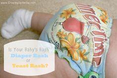 Is your baby's rash diaper rash or yeast rash?