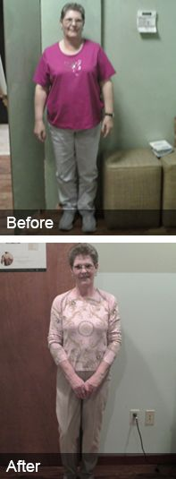 22 Best Weight Loss Transformations Images Medical Weight Loss