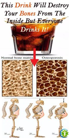 This Drink Will Destroy Your Bones From The Inside But Everyone Drinks It