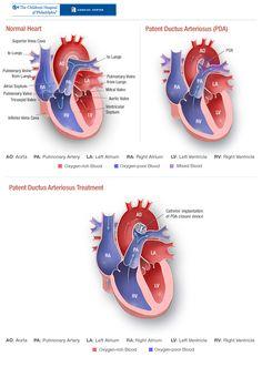 Thesis on patent ductus arteriosus
