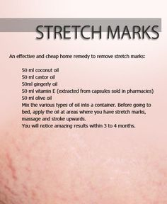 Home Remedy for Stretch Marks - My homemade stretch mark lotion -  If you want to get rid of stretch marks, you have to try it
