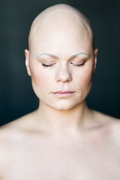 Baldvin: I Photograph Women With Alopecia To Break Gender Stereotypes | Bored Panda