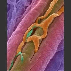 Heart Muscle, microphotography