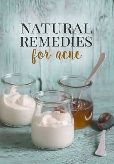 Natural Home Remedies for Acne - If you've ever had acne or pimples, you know how frustrating it can be. Using natural home remedies for acne works so much better for your skin than harsh chemicals #naturalremedies #homeremedies  #naturalskincare #acne #acnetreatment #skincare #skincaretips