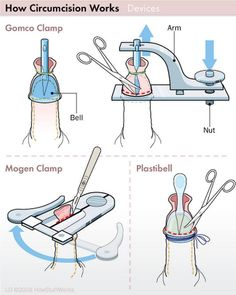 Circumcision Procedure - The circumcision procedure is done differently for infants than it is for adults. Take a look at the circumcision procedure and circumcision devices. Mother And Baby, Mom And Baby, Baby Boys, Circumcision Care, Mindful Parenting, Peaceful Parenting, Newborn Care, Newborn Nursing, Nursing