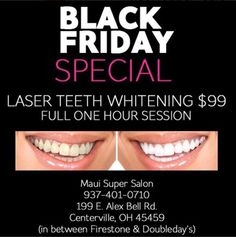 Don't miss our on our Black Friday Sale! Get a 1 hour teeth laser teeth whitening session for just $99!! Call to schedule your appt: 937.401.0710