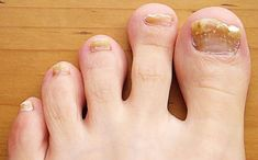 Toenail Fungus Remedies Home Remedies for Fingernail Fungus. Oh this is nasty but there are a couple ladies in my family no one would ever guess this would happen to. Toenail Fungus Home Remedies, Toenail Fungus Treatment, Nail Treatment, Foot Remedies, Health Remedies, Sleep Remedies, Toenail Problems, Health And Wellness, Human Body