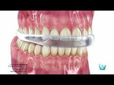 BRUXISMO: Consecuencias y Tratamiento | Directorio Odontológico